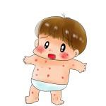 育児体験記 増えては消えを繰り返し、なかなか治らないこともある 『水いぼ』